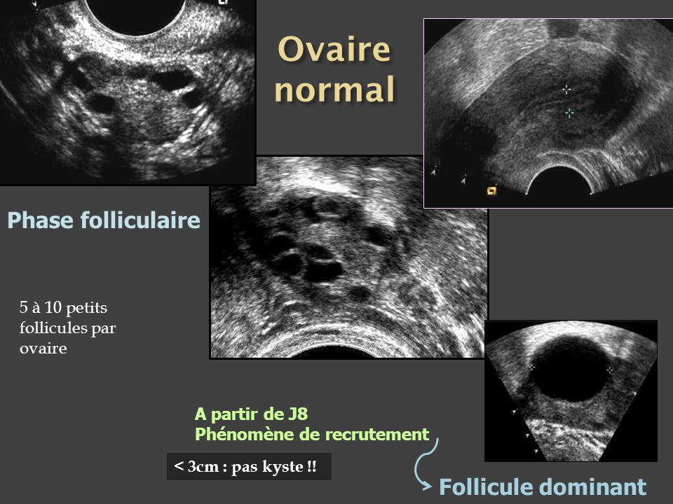 Ovaire normal Phase folliculaire Follicule dominant