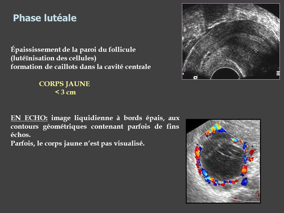 Phase lutéale Épaississement de la paroi du follicule (lutéïnisation des cellules) formation de caillots dans la cavité centrale.