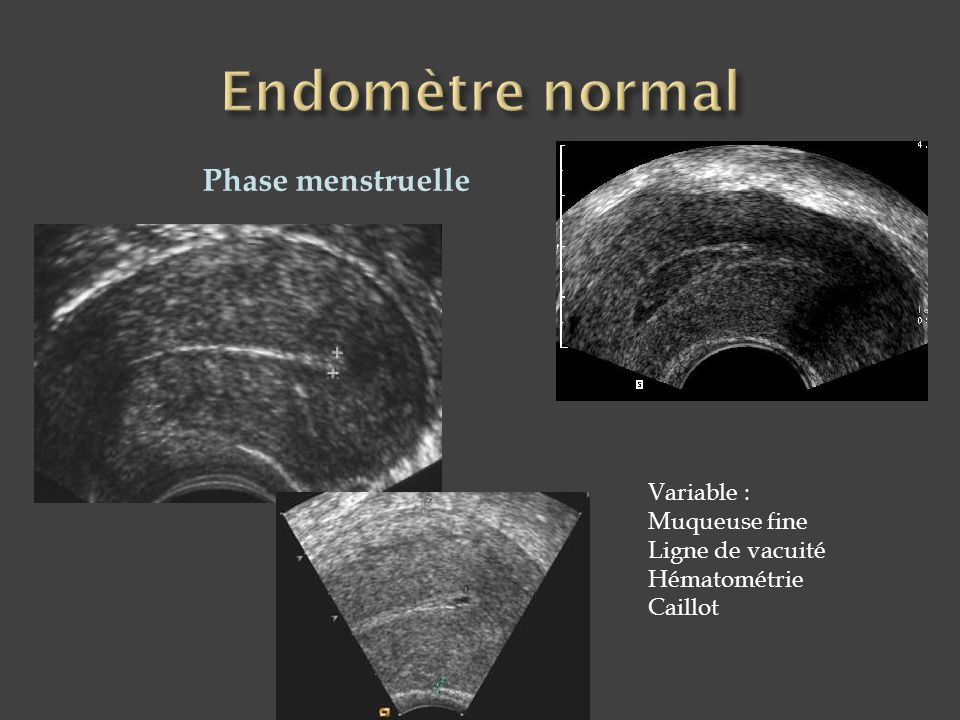Endomètre normal Phase menstruelle Variable : Muqueuse fine