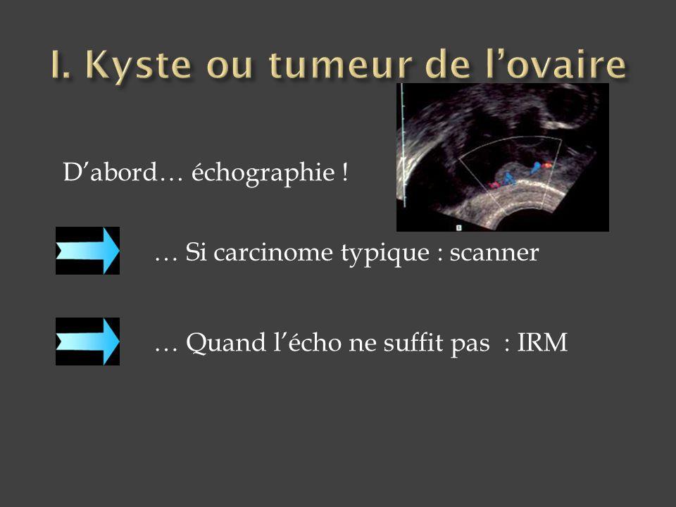 I. Kyste ou tumeur de l'ovaire