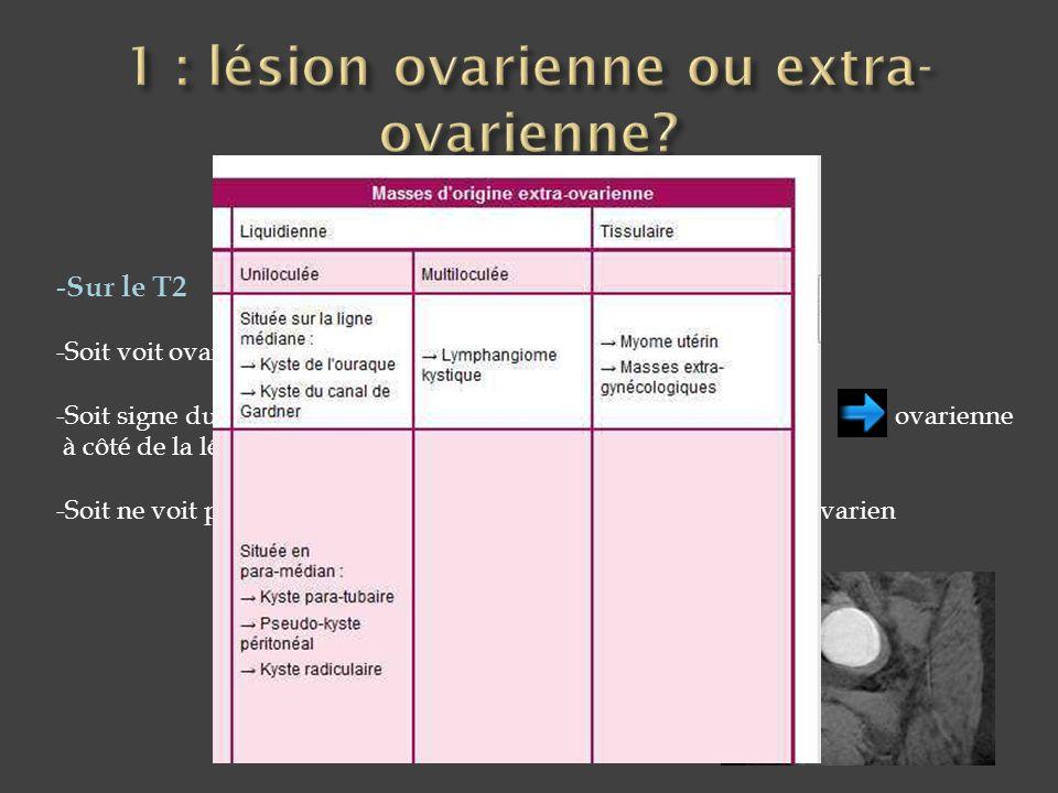 1 : lésion ovarienne ou extra-ovarienne