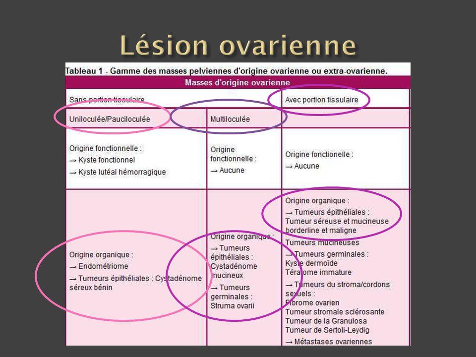 Lésion ovarienne