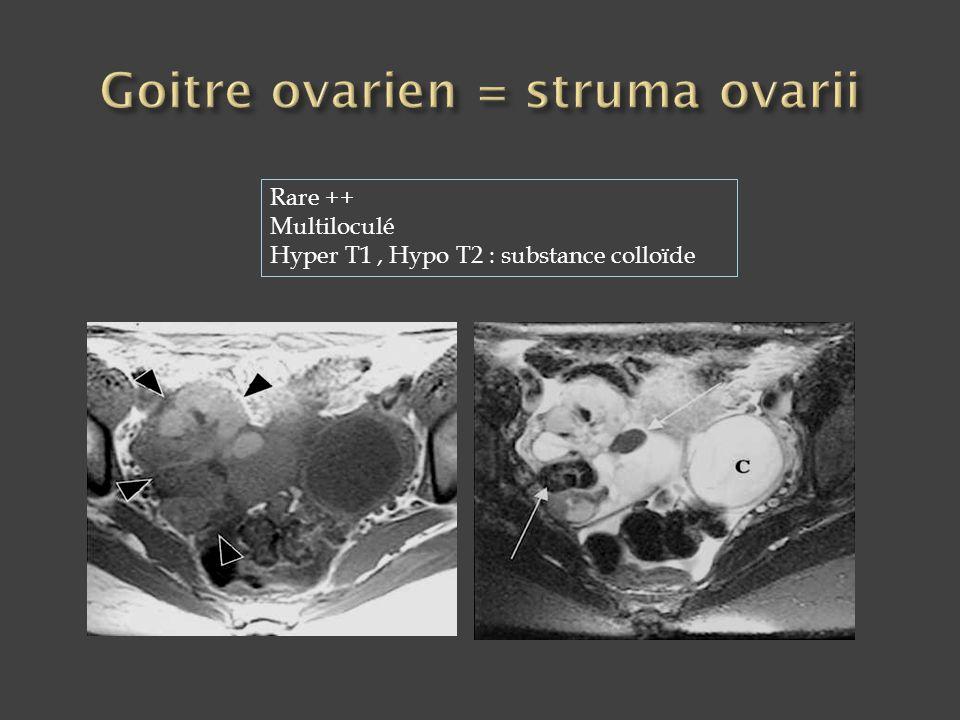 Goitre ovarien = struma ovarii