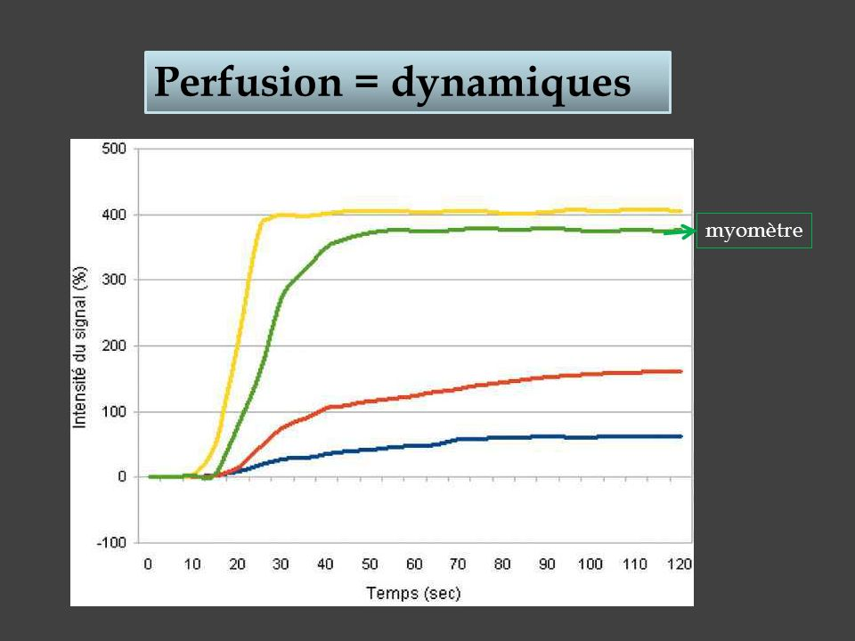 Perfusion = dynamiques