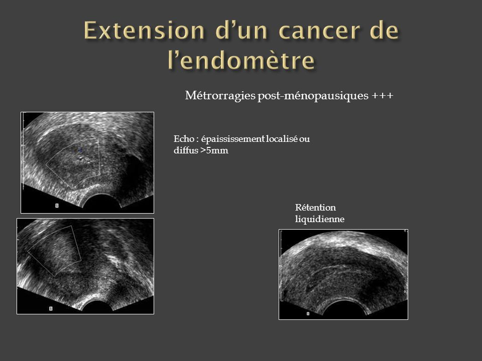 Extension d'un cancer de l'endomètre