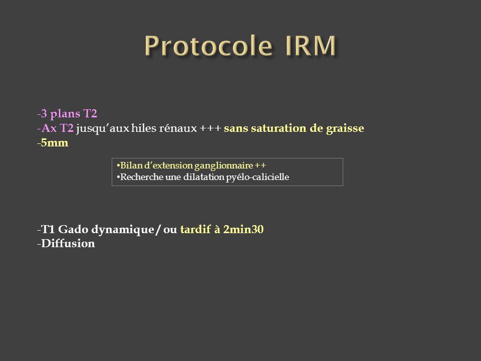 Protocole IRM 3 plans T2. Ax T2 jusqu'aux hiles rénaux +++ sans saturation de graisse. 5mm. T1 Gado dynamique / ou tardif à 2min30.