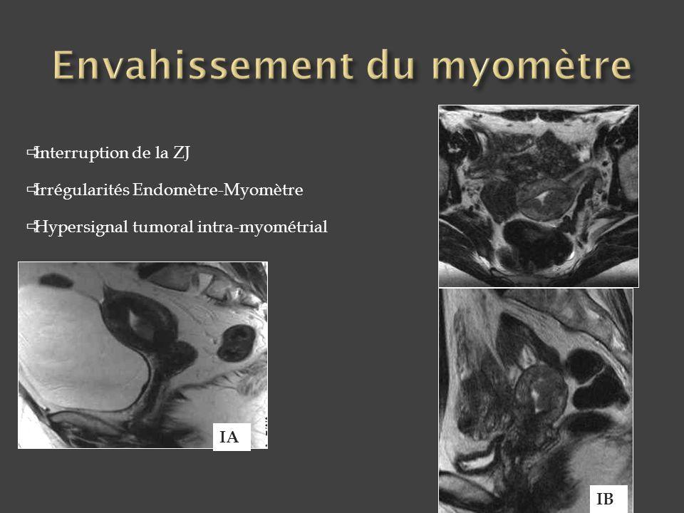 Envahissement du myomètre