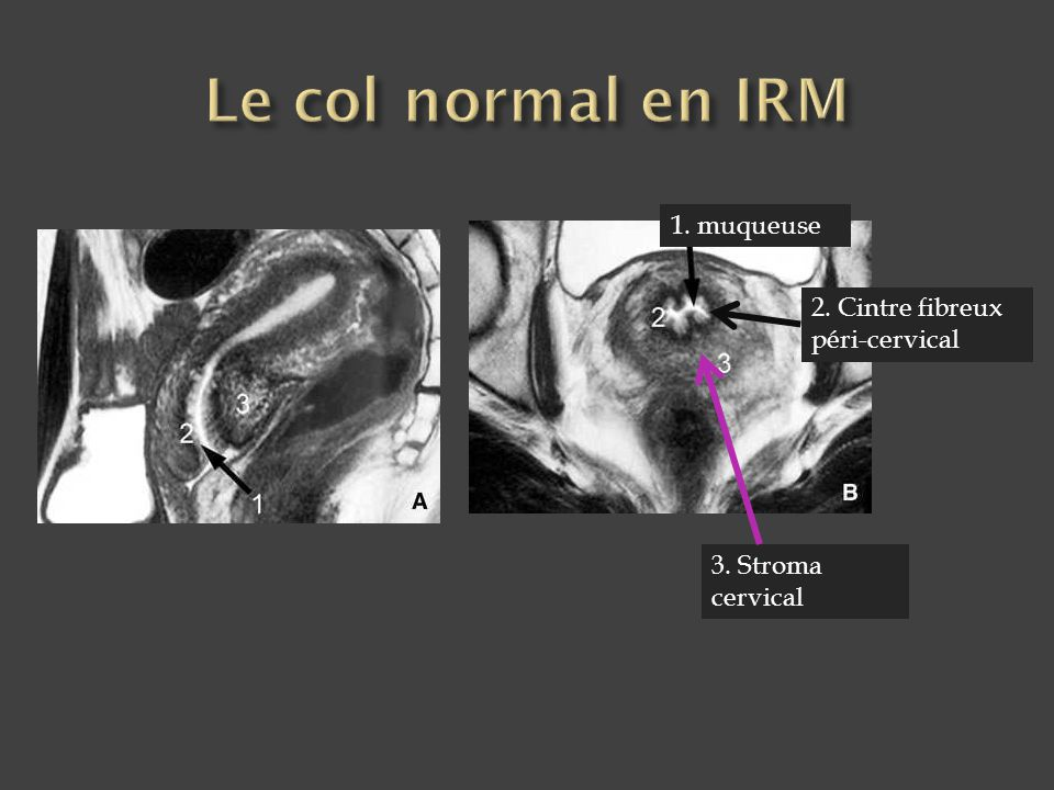 Le col normal en IRM 1. muqueuse 2. Cintre fibreux péri-cervical