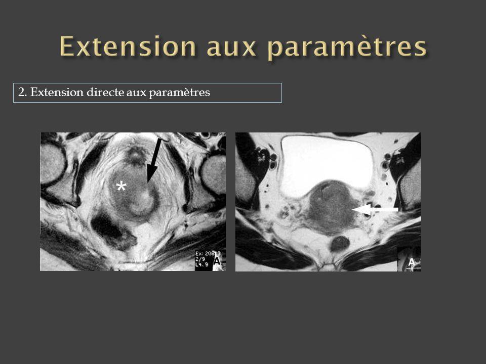 Extension aux paramètres