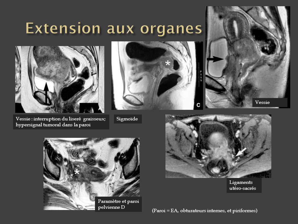 Extension aux organes pelviens