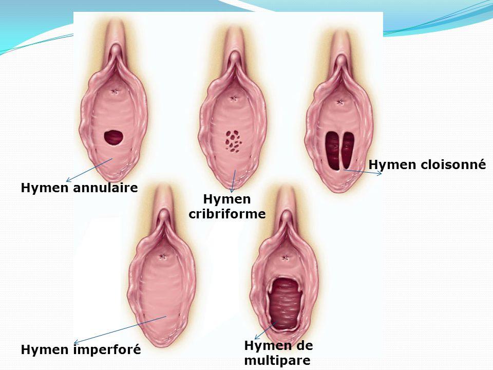 Hymen cloisonné Hymen annulaire Hymen cribriforme Hymen de multipare Hymen imperforé
