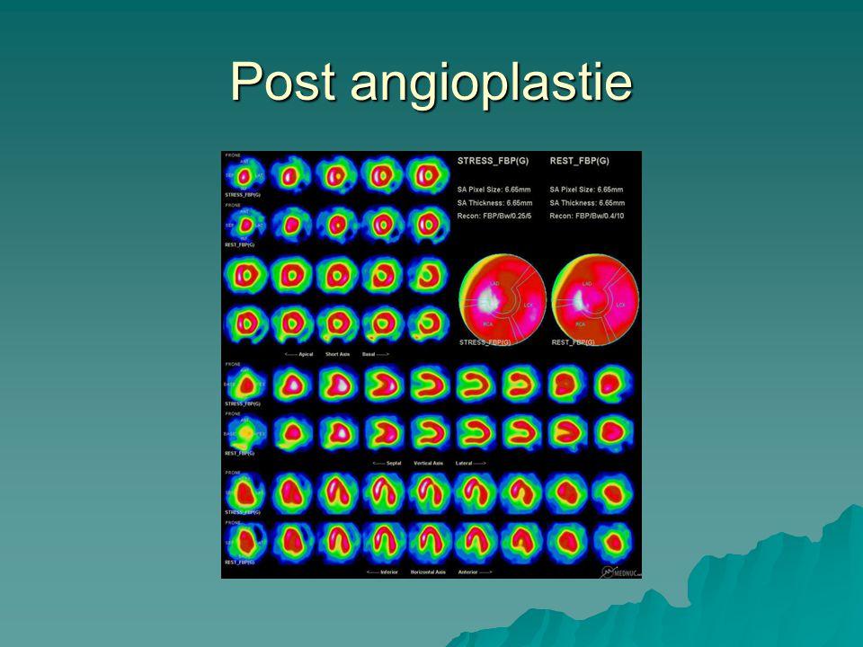 Post angioplastie