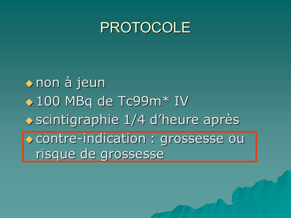 PROTOCOLE non à jeun 100 MBq de Tc99m* IV