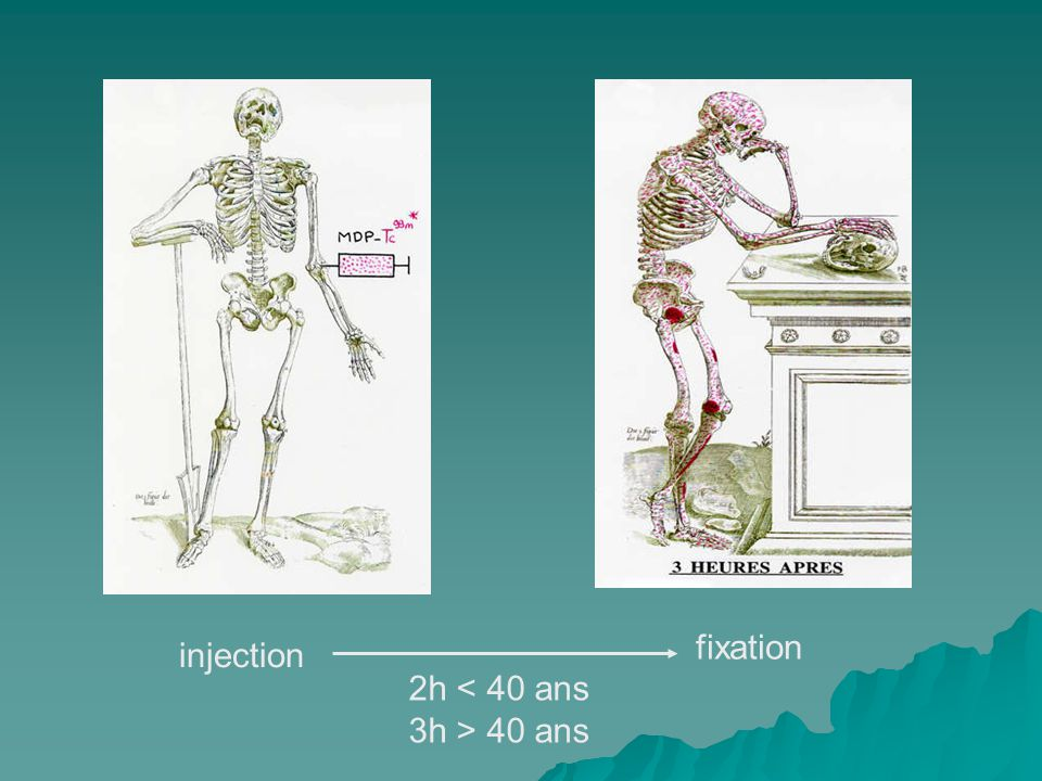 fixation injection 2h < 40 ans 3h > 40 ans