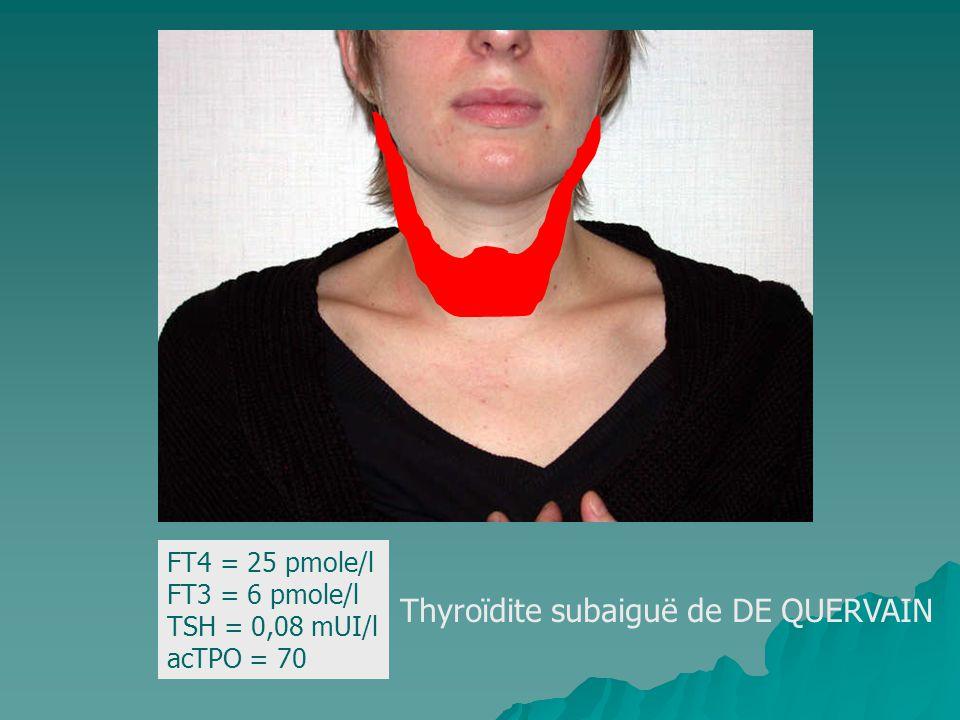 Thyroïdite subaiguë de DE QUERVAIN