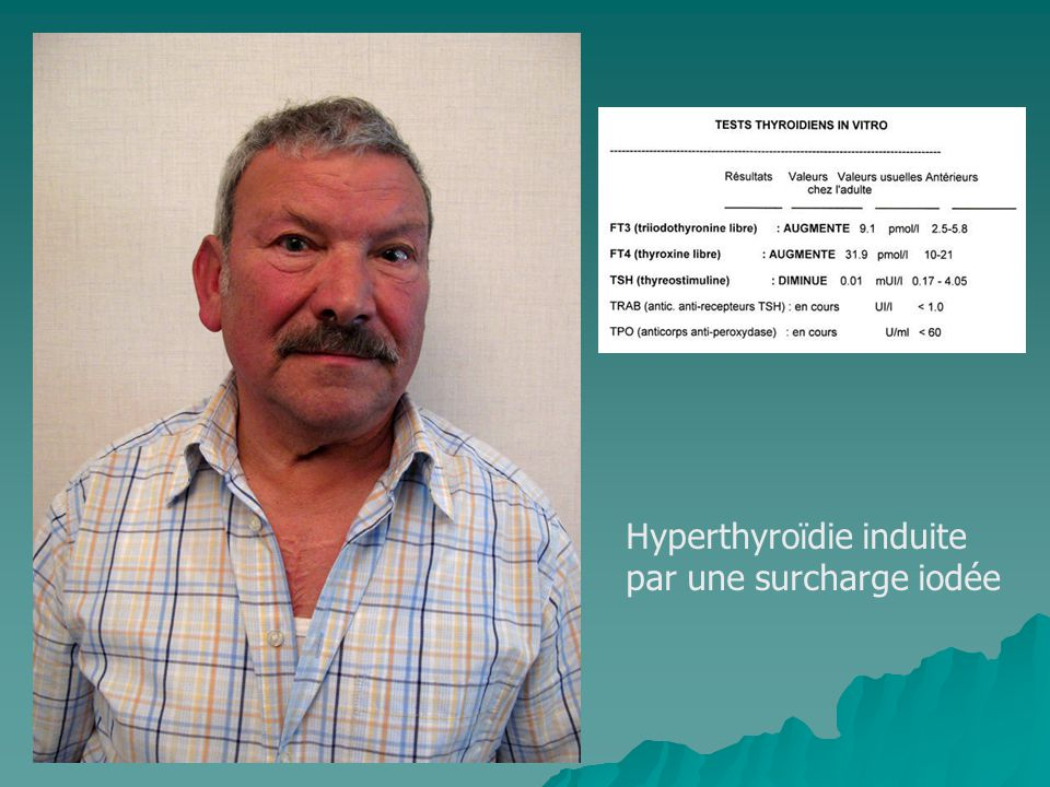 Hyperthyroïdie induite