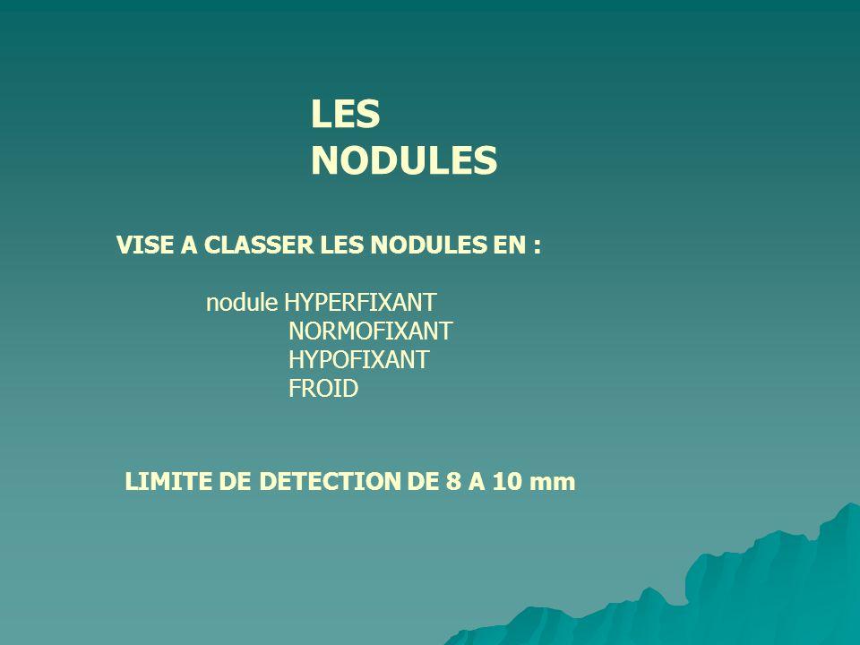 LES NODULES VISE A CLASSER LES NODULES EN : nodule HYPERFIXANT