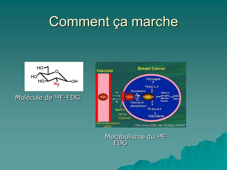 Comment ça marche Molécule de 18F-FDG Métabolisme du 18F-FDG