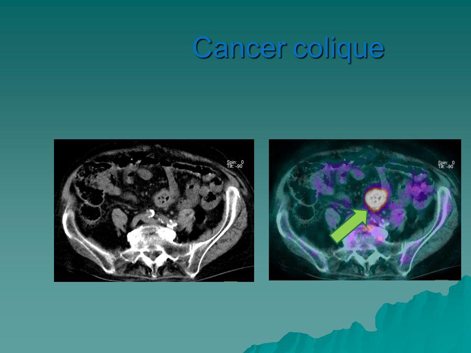 Cancer colique