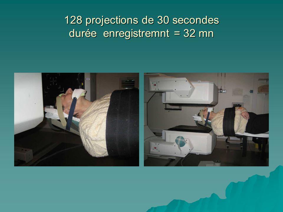 128 projections de 30 secondes durée enregistremnt = 32 mn