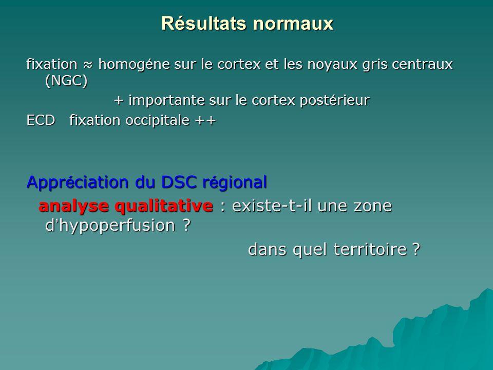 Résultats normaux Appréciation du DSC régional