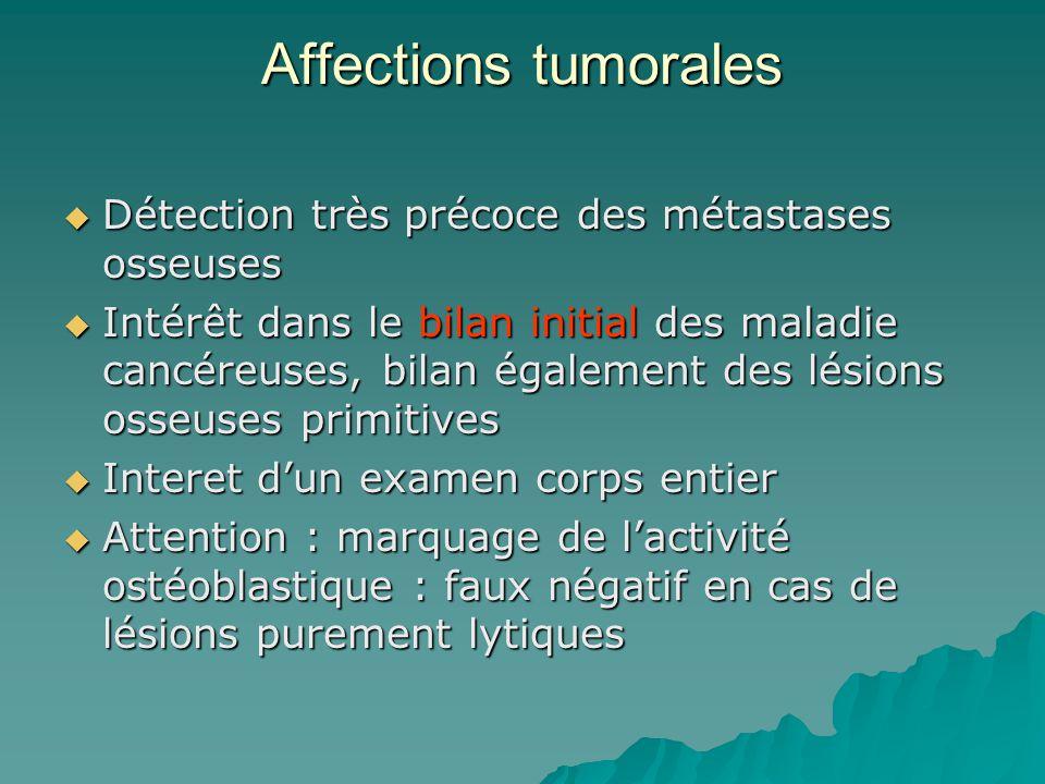 Affections tumorales Détection très précoce des métastases osseuses