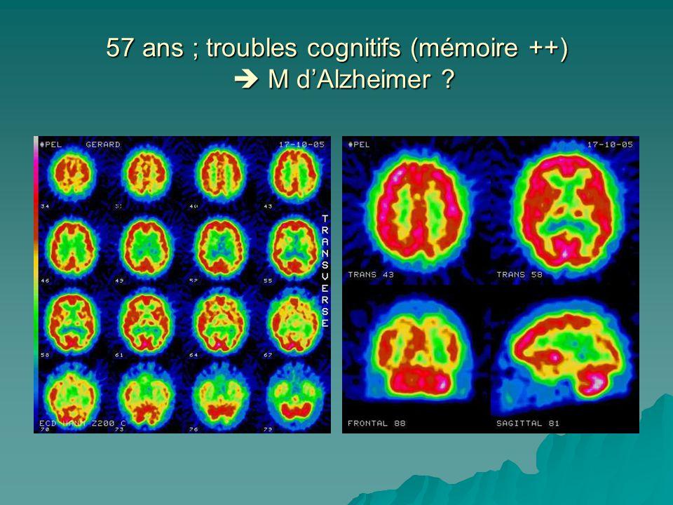 57 ans ; troubles cognitifs (mémoire ++)  M d'Alzheimer