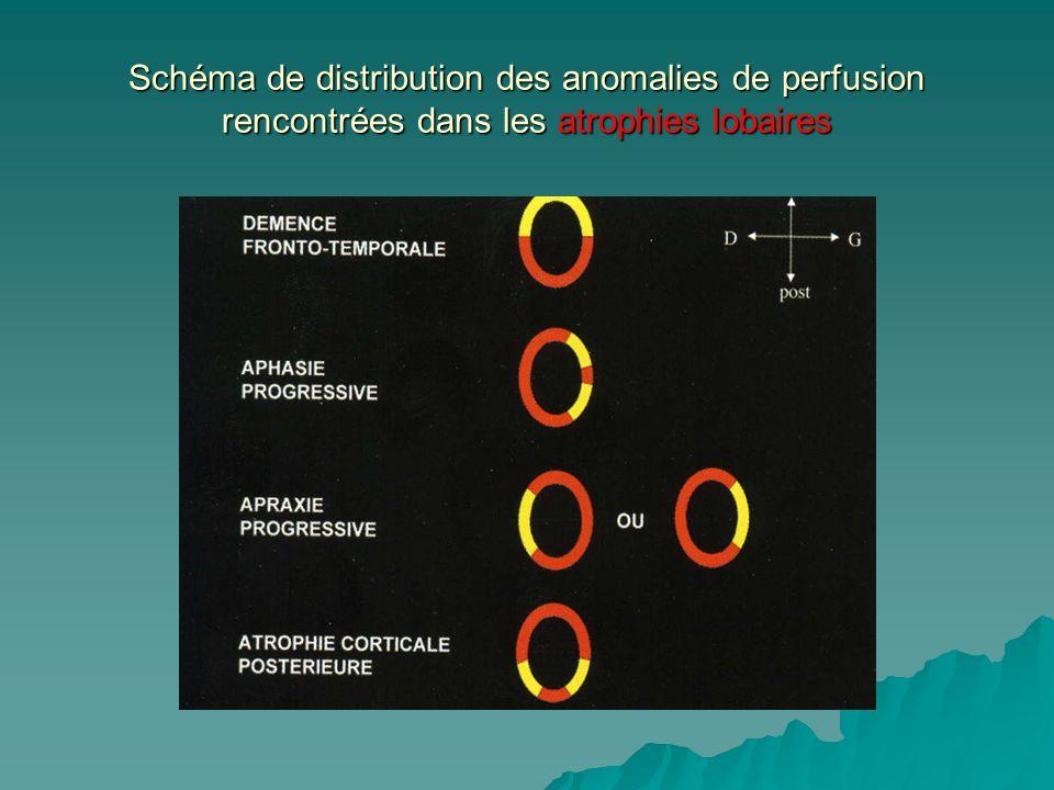 Schéma de distribution des anomalies de perfusion rencontrées dans les atrophies lobaires