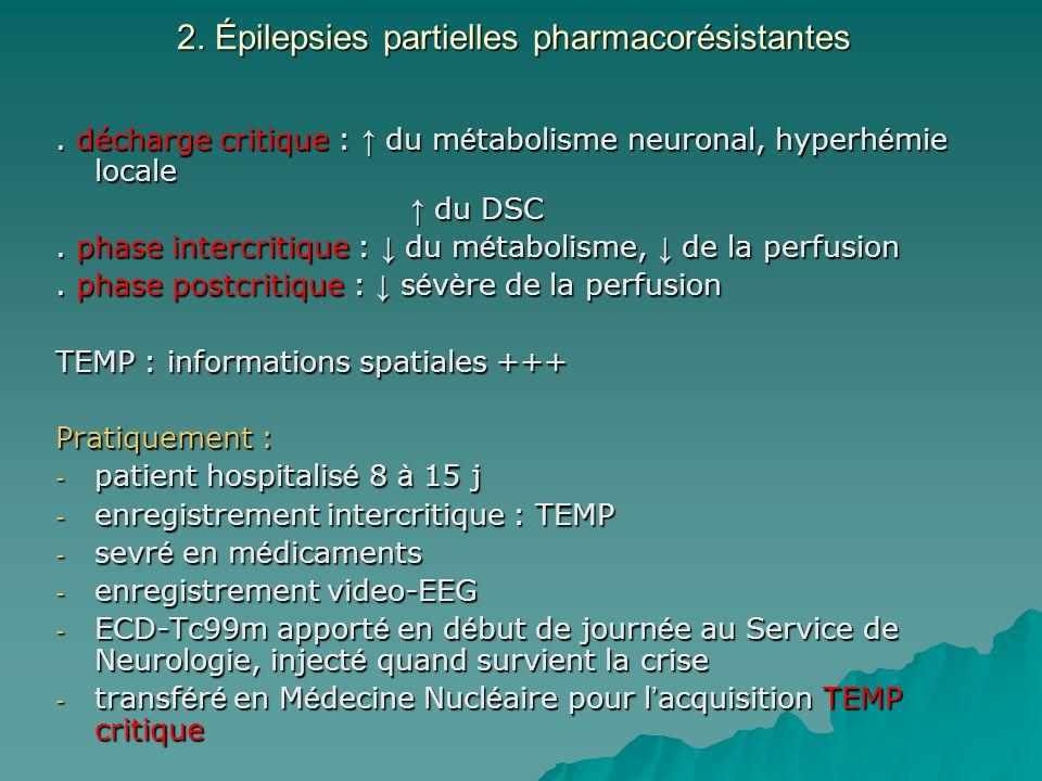 2. Épilepsies partielles pharmacorésistantes