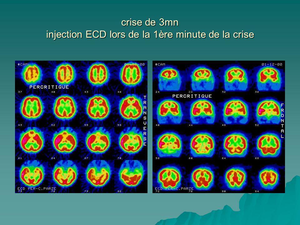 crise de 3mn injection ECD lors de la 1ère minute de la crise