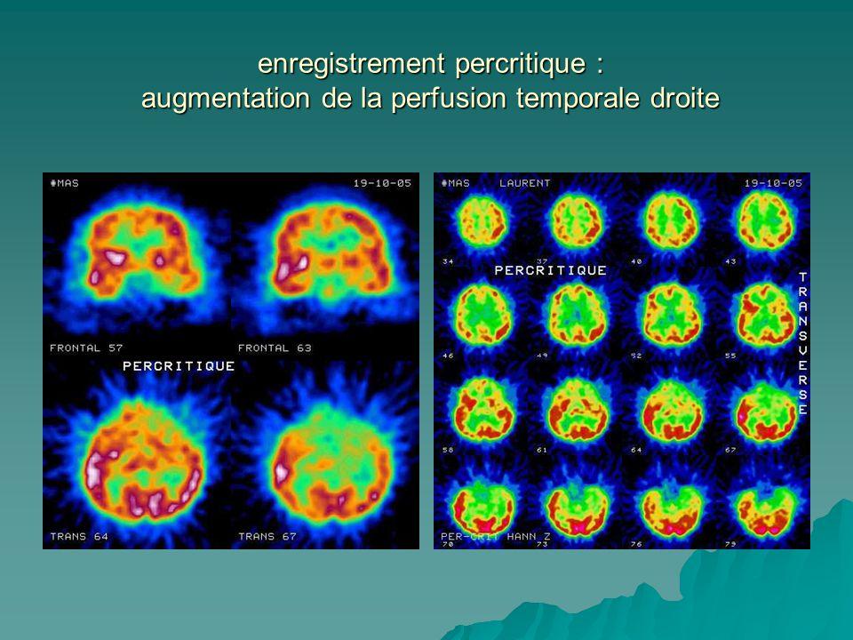 enregistrement percritique : augmentation de la perfusion temporale droite