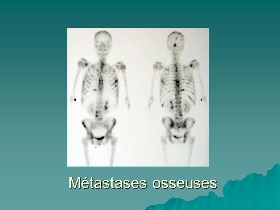 Métastases osseuses