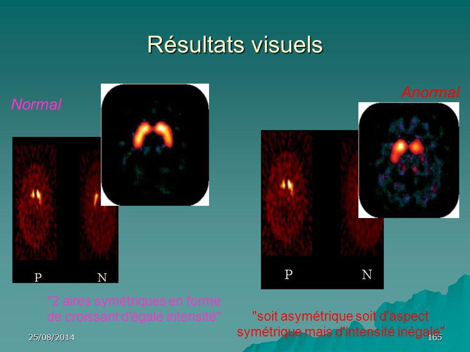 Résultats visuels Anormal Normal 2 aires symétriques en forme