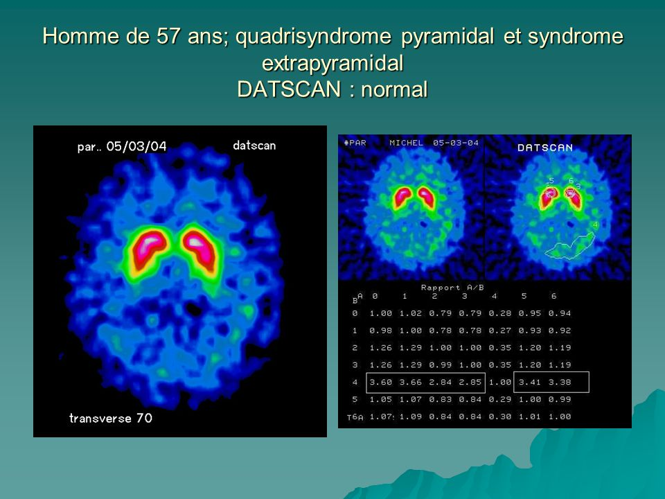 Homme de 57 ans; quadrisyndrome pyramidal et syndrome extrapyramidal DATSCAN : normal