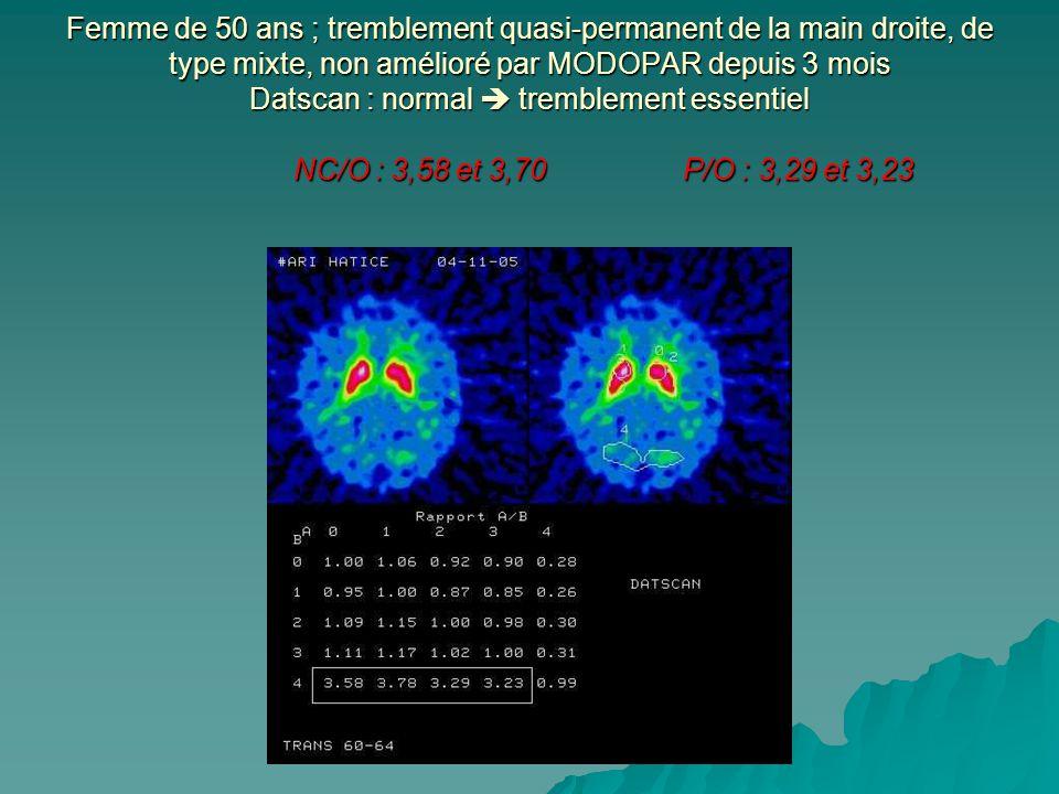 Femme de 50 ans ; tremblement quasi-permanent de la main droite, de type mixte, non amélioré par MODOPAR depuis 3 mois Datscan : normal  tremblement essentiel NC/O : 3,58 et 3,70 P/O : 3,29 et 3,23
