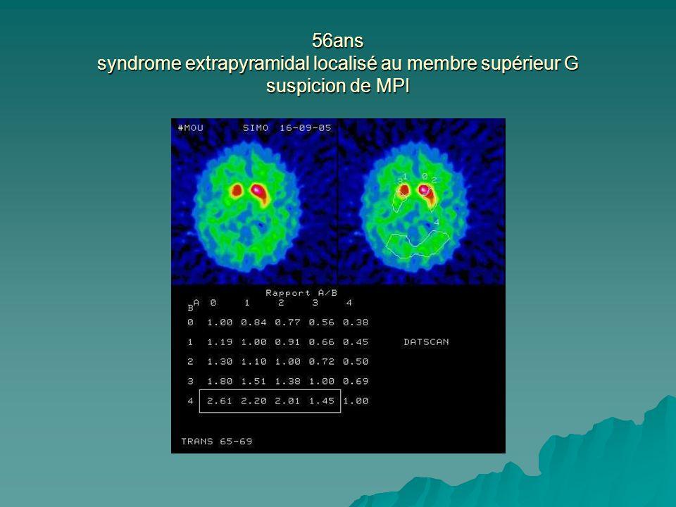 56ans syndrome extrapyramidal localisé au membre supérieur G suspicion de MPI