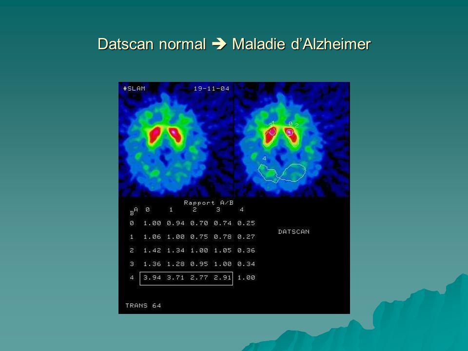 Datscan normal  Maladie d'Alzheimer