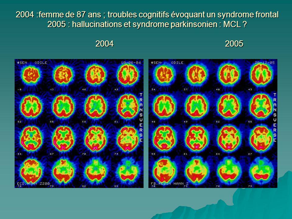 2004 :femme de 87 ans ; troubles cognitifs évoquant un syndrome frontal 2005 : hallucinations et syndrome parkinsonien : MCL .
