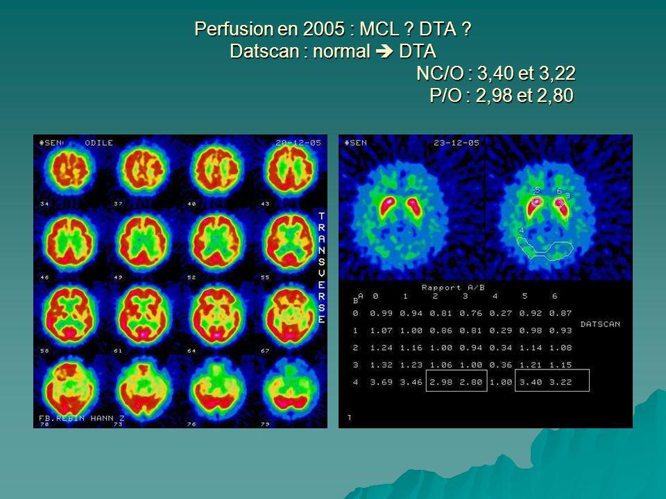 Perfusion en 2005 : MCL DTA Datscan : normal  DTA NC/O : 3,40 et 3,22 P/O : 2,98 et 2,80