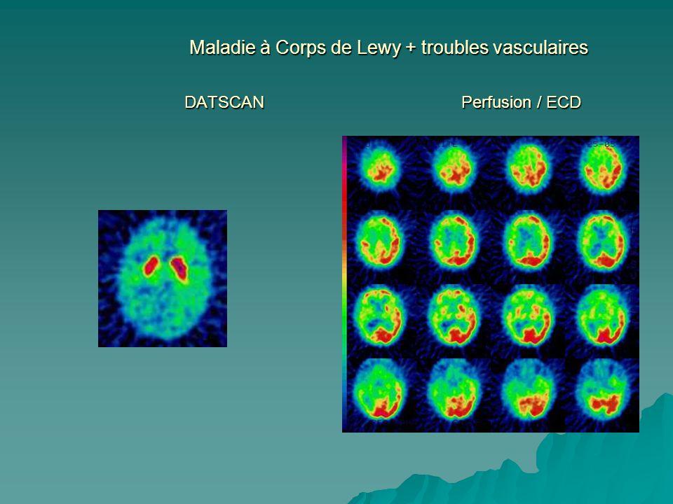 Maladie à Corps de Lewy + troubles vasculaires DATSCAN Perfusion / ECD