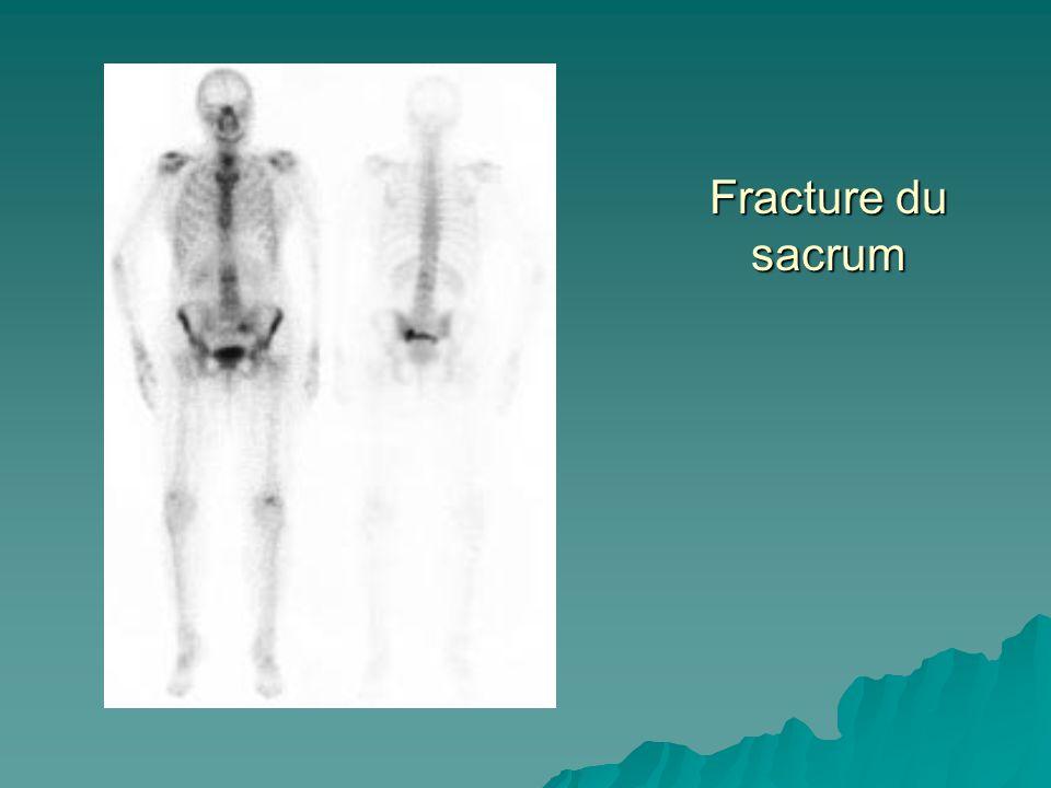 Fracture du sacrum
