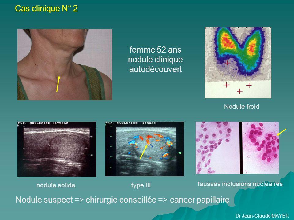 Nodule suspect => chirurgie conseillée => cancer papillaire