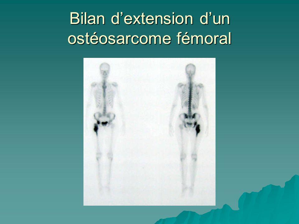 Bilan d'extension d'un ostéosarcome fémoral