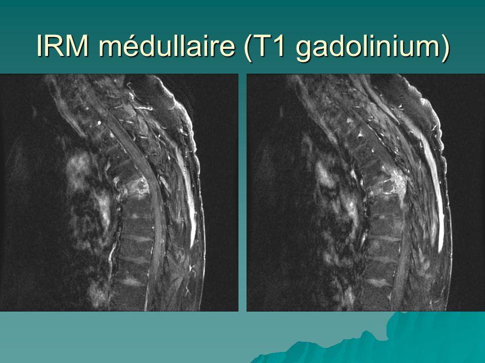 IRM médullaire (T1 gadolinium)