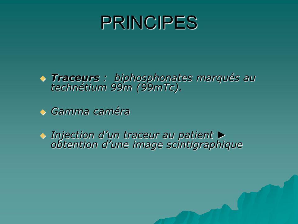 PRINCIPES Traceurs : biphosphonates marqués au technétium 99m (99mTc).