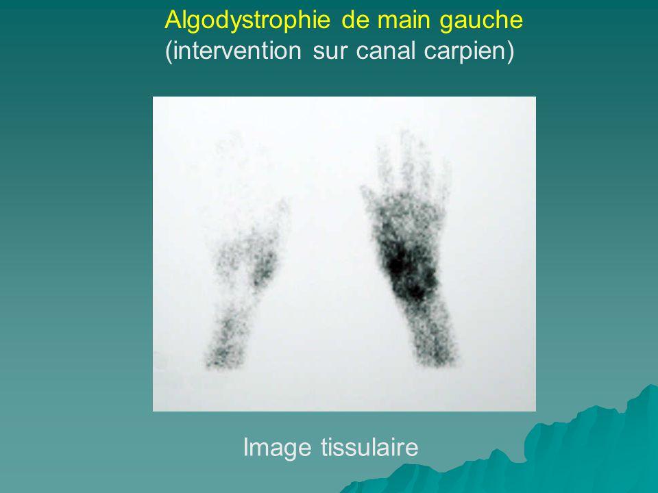 Algodystrophie de main gauche