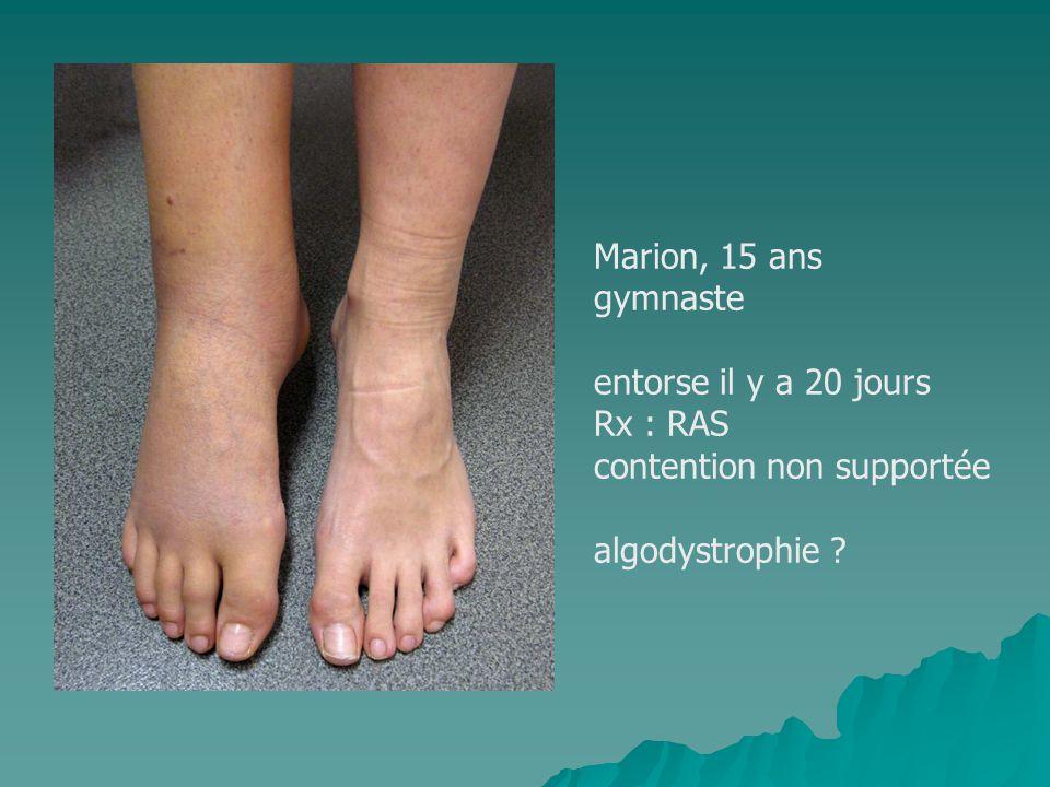 Marion, 15 ans gymnaste entorse il y a 20 jours Rx : RAS contention non supportée algodystrophie