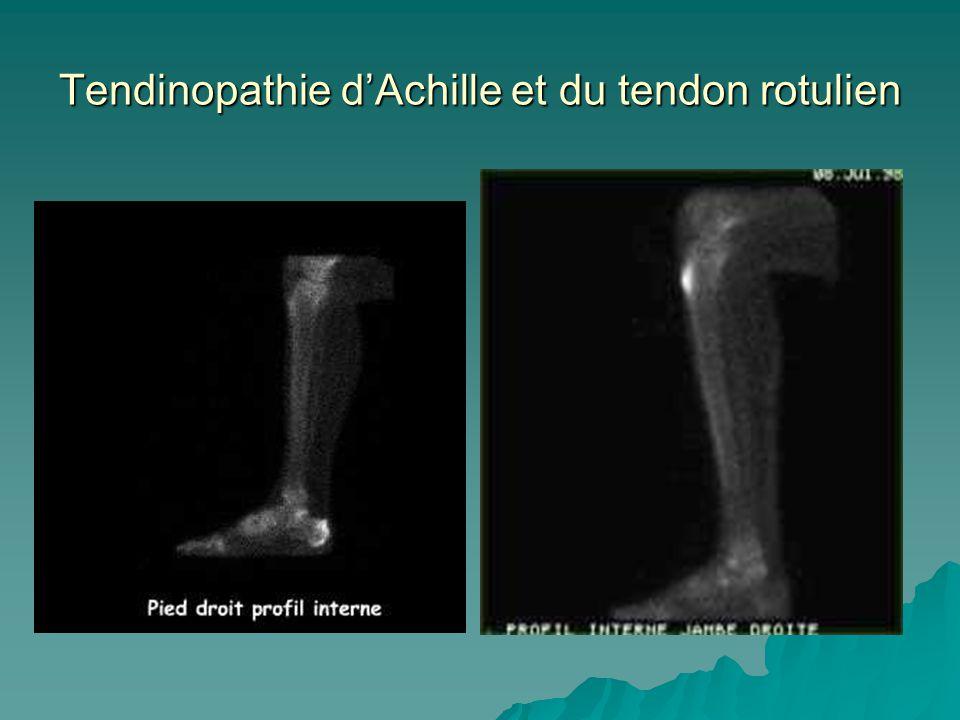 Tendinopathie d'Achille et du tendon rotulien