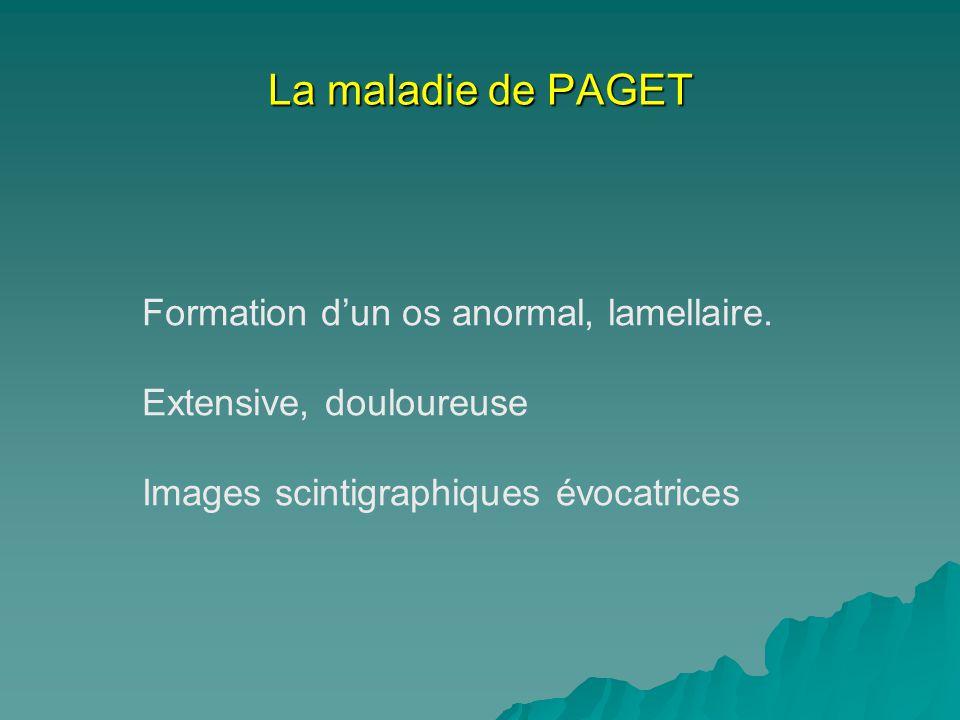 La maladie de PAGET Formation d'un os anormal, lamellaire.