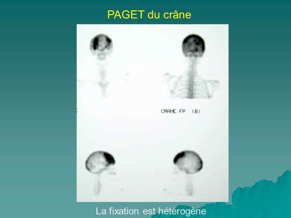 PAGET du crâne La fixation est hétérogène